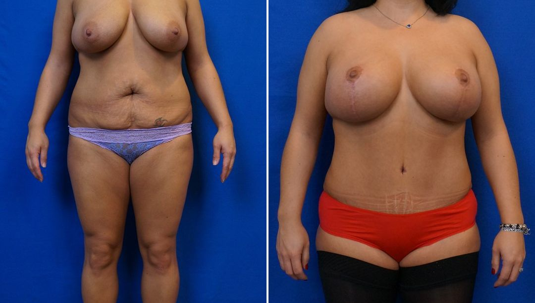 Tummy Tuck Patient 4